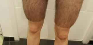 Les coureurs cyclistes et l'épilation des jambes