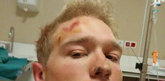 Magnus Cort Nielsen s'est cassé la clavicule à l'entraînement