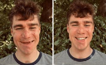 Vuelta 2021 : Fabio Jakobsen au départ